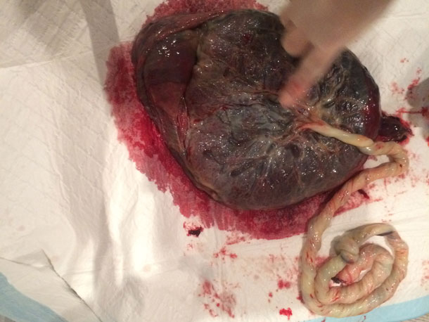 Checking the Placenta